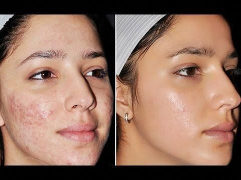 get rid of hormonal acne #howtoremoveacne -  get rid of hormonal acne #howtoremoveacne  - #diyHormonalAcneTreatment #HormonalAcneTreatment #HormonalAcneTreatmentbreakouts #HormonalAcneTreatmentchin #HormonalAcneTreatmentdarkspots #HormonalAcneTreatmentessentialoils #HormonalAcneTreatmentfacemapping #HormonalAcneTreatmentfood #HormonalAcneTreatmentforwomen #HormonalAcneTreatmenthowtogetrid #HormonalAcneTreatmentmasks #HormonalAcneTreatmentnatural #HormonalA #AcneScarsProducts