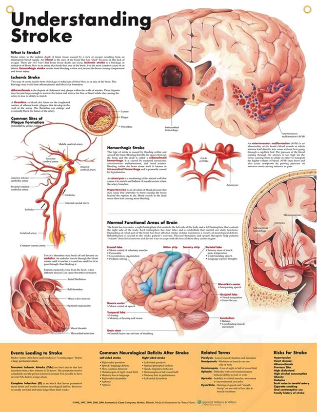 Understanding Stroke Chart 20x26 | Anatomy, Stroke recovery and Medical
