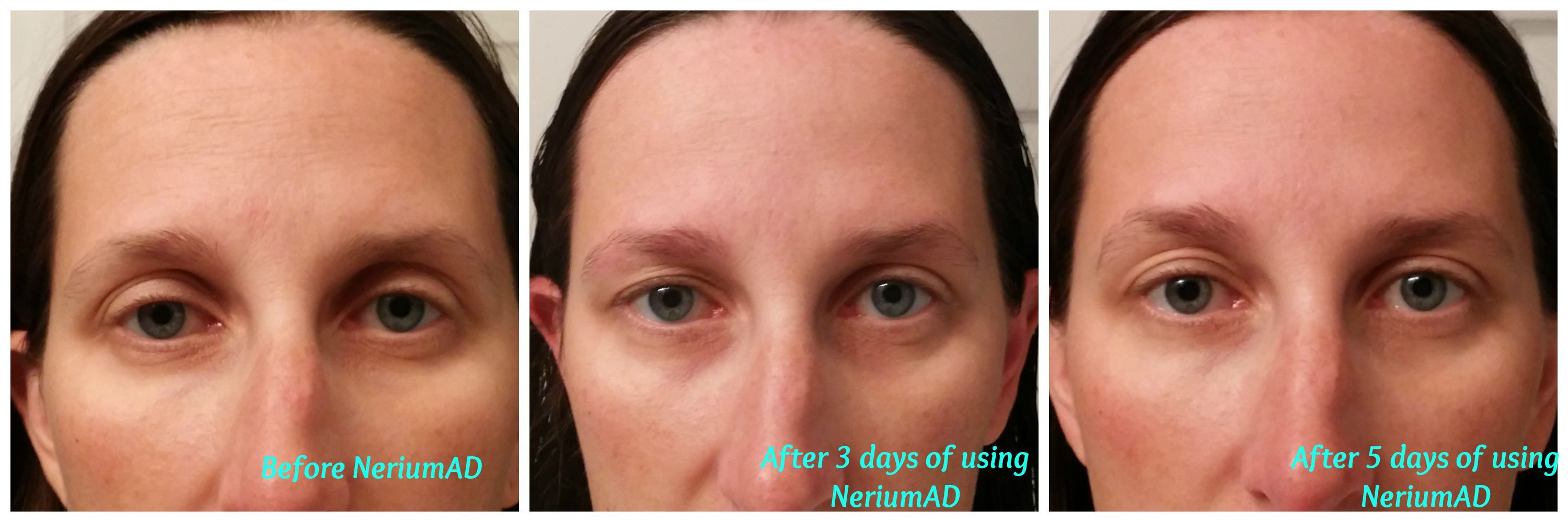 These are my results after 5 days of using NeriumAD.  Join my Facebook group at https://www.facebook.com/groups/NeriumbyAmber/ or my Nerium site http://www.amberkatrena.nerium.com
