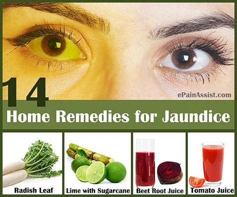 Home Remedies For Jaundice In Adults Jaundice Remedies Remedies