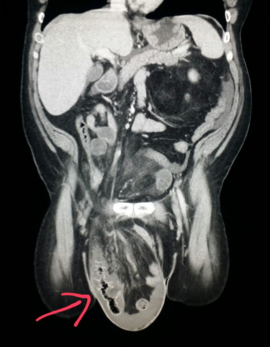 Abdomen #CT shows a large #hernia (#inguinal) in a #patient with ...