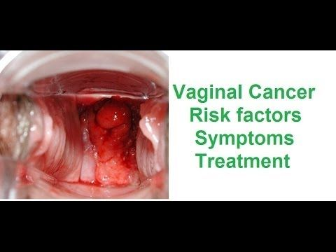 Symptons of vaginal cancer