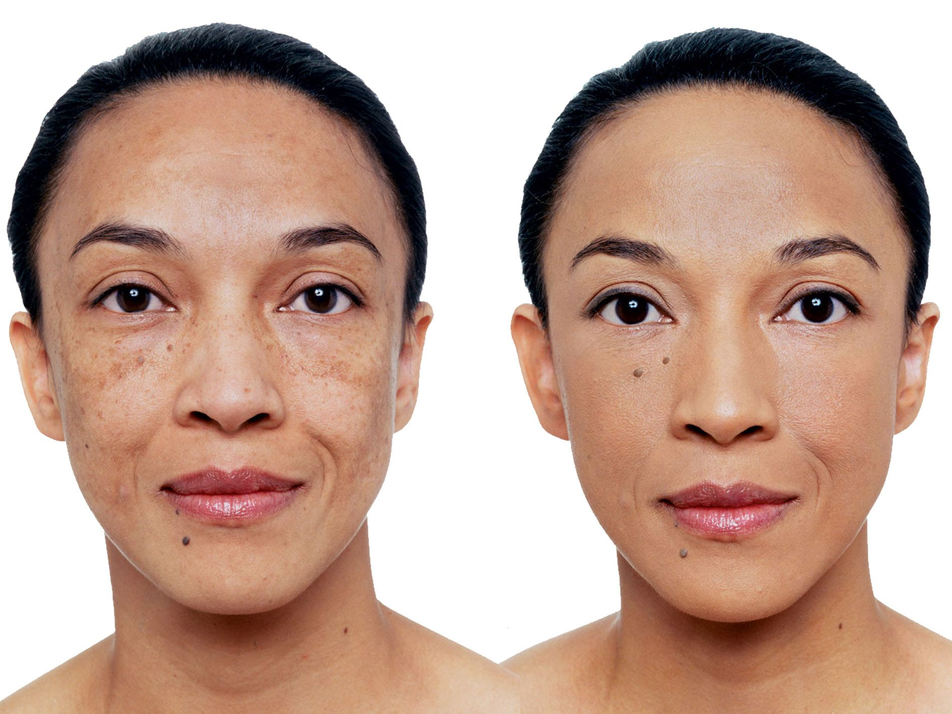Vichy S Dermablend Camouflage Foundation Darren Kennedy S Helpmystyle Ie Fashion Style Life Dermablend Vichy Black Skin
