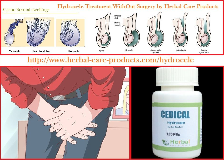 Natural Herbal Treatment For Hydrocele And Symptoms ...
