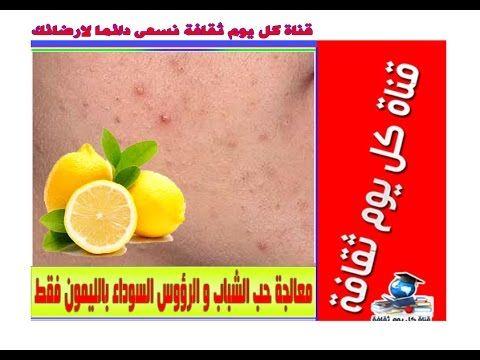 اضرار الماء والليمون