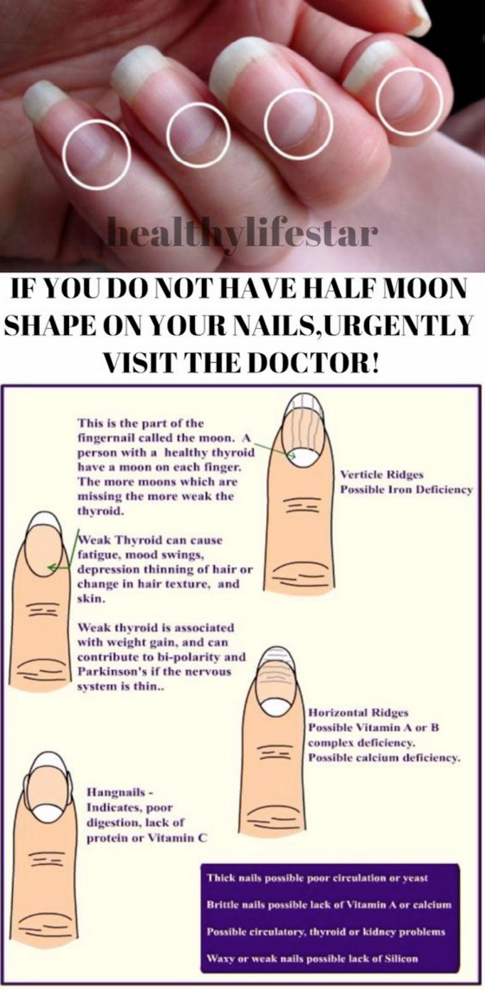 IF YOU DO NOT HAVE HALF MOON SHAPE ON YOUR NAILS,URGENTLY VISIT THE ...