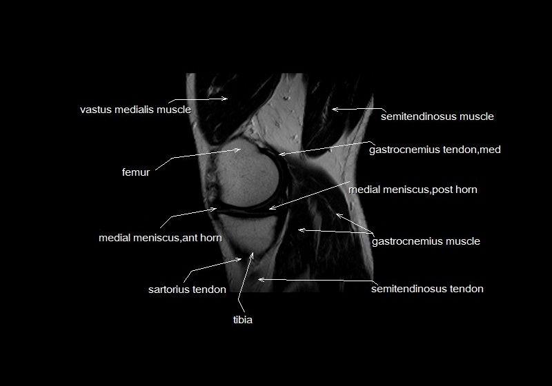Mri Knee Anatomy Knee Sagittal Anatomy Free Cross Sectional