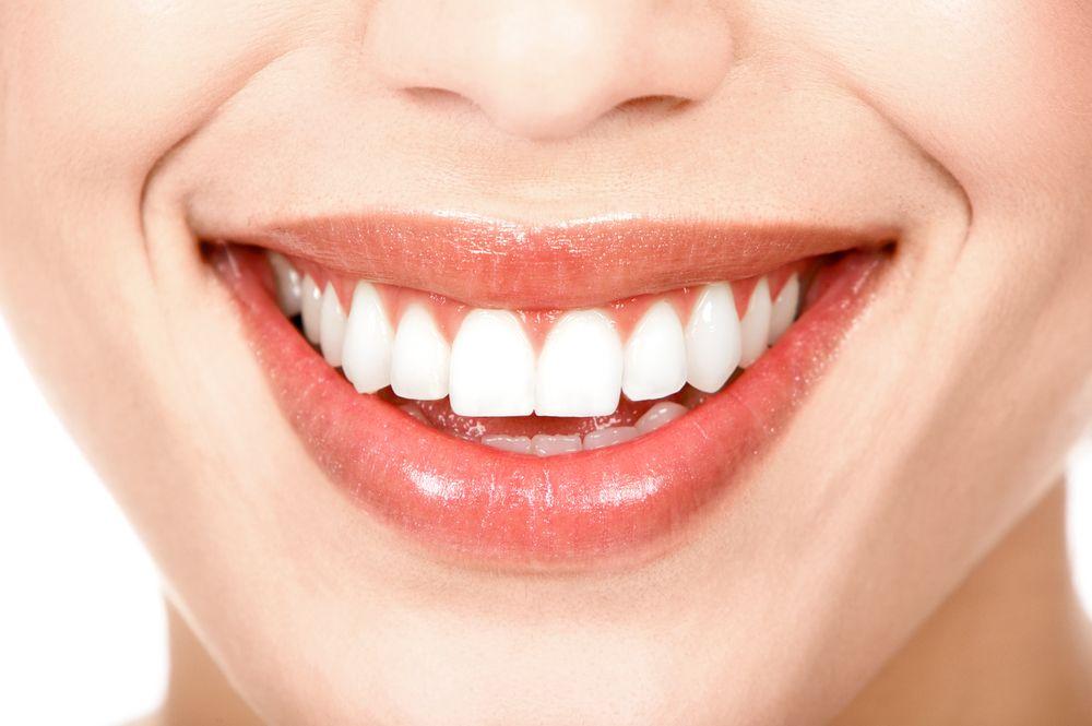 Comment Avoir Des Smiles