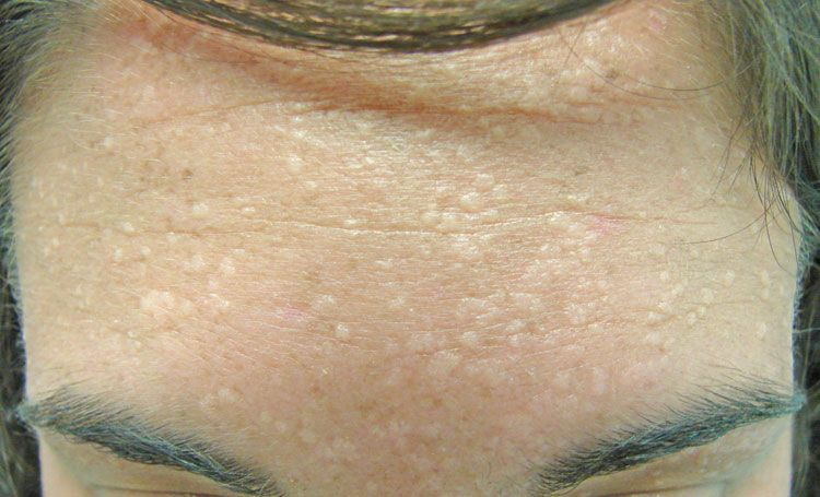 flat wart on forehead how to remove warts on face