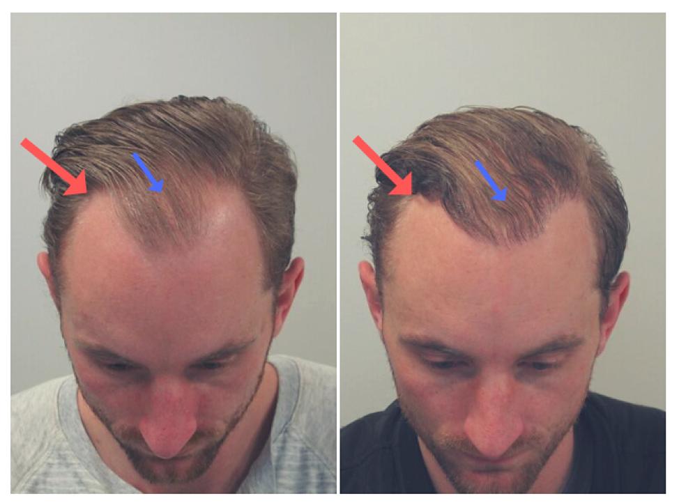 Fut Hair Transplant Surgery What Is Strip Surgery Male Pattern Baldness Dr Ashok Sinha Hair Transplant Hair Transplant Surgery Pattern Baldness