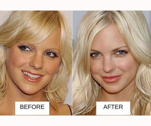 25 Most Popular Celebrities With Lip Fillers: Before And After With Images