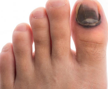 What Causes Bruised Toe Nail