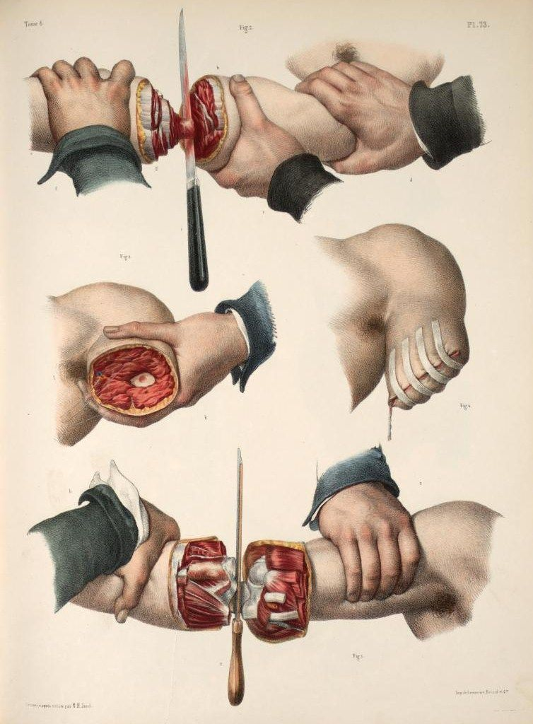 Amputation of the arm\'. Lithography with hand-colouring by Nicolas ...