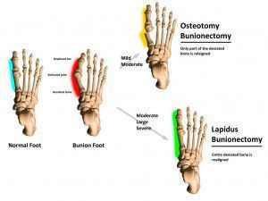 Advice on what to expect after the most common bunion