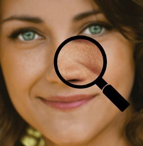 Poren An Der Nase