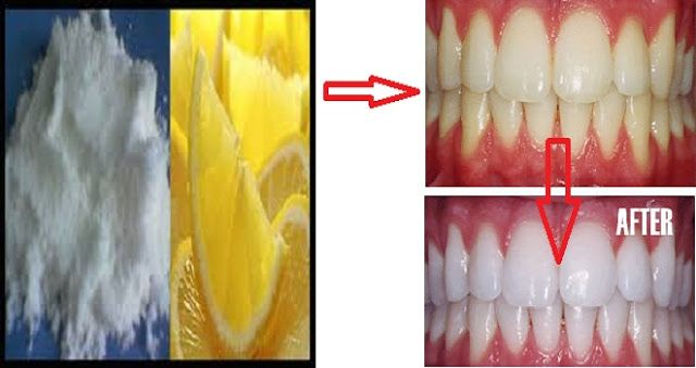 Sungguh Ajaib Begini Cara Putihkan Gigi Anda Pakai Kulit Jeruk Atau