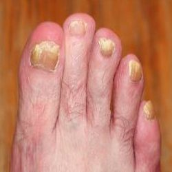 6 Excellent Home Remedies For Toenail Fungus | medical home recipe ...