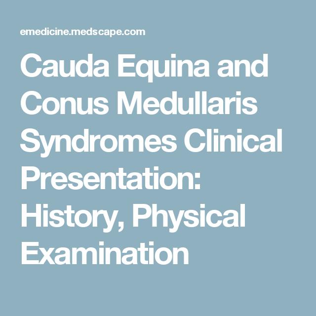 Cauda Equina and Conus Medullaris Syndromes Clinical Presentation ...