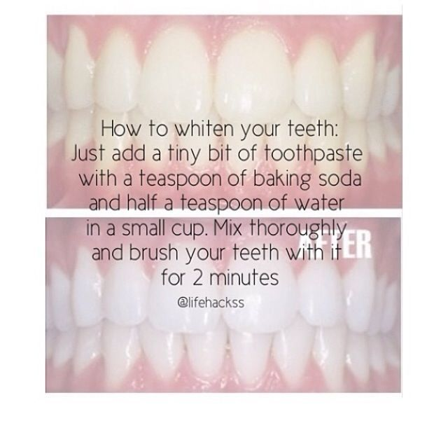After Braces Which Btw Is This Monday Beautyhacksnails