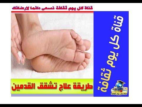 طريقة علاج تشقق القدمين طرق علاج تشقق القدمين افضل علاج لتشقق القدمين