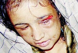 13 year old girl in Afghanistan tortured and raped by husband and family.