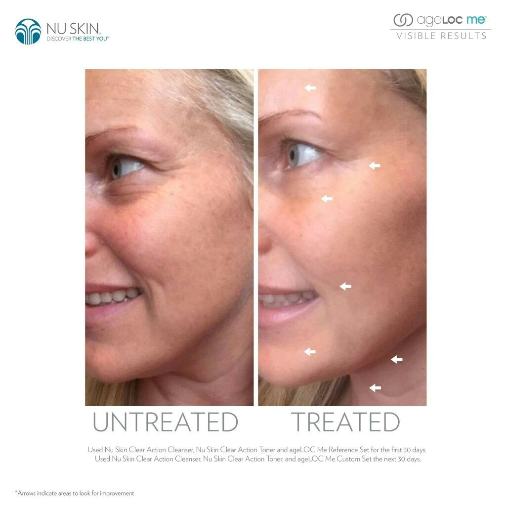 Pin By Isabella Hoi On Before After Natural Anti Aging Skin Care Facial Spa Nuskin
