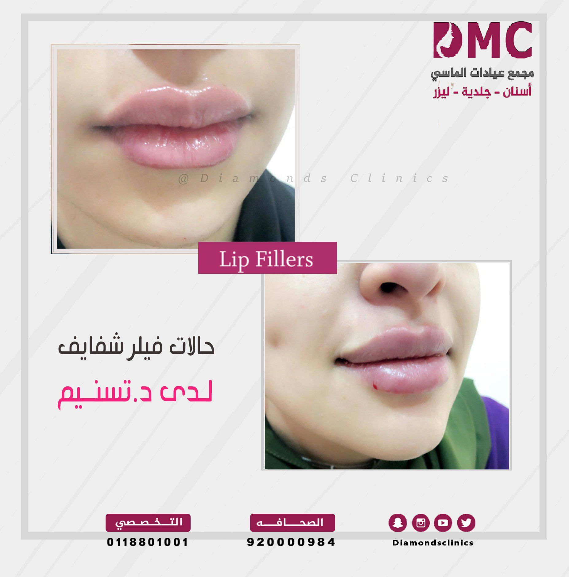 حالتان فيلر للشفايف رسم وكنتور وتعبئة الشفاه بدقه متناهيه لدى دكتورة تسنيم سعد سا Lip Fillers Lips Clinic