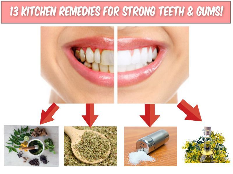 Pin on Wisdom Teeth Pain Relief