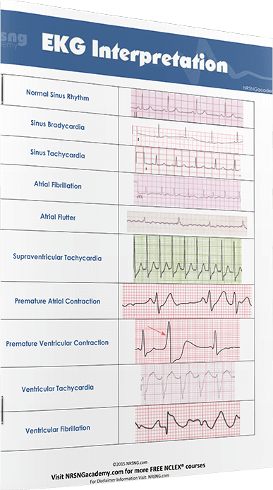 cardiac arrhythmia essay Cardiac cycle (medicine essay sample)  medical doctors use ekg to study and detect various heart problems like arrhythmias, heart failure and heart attack the.