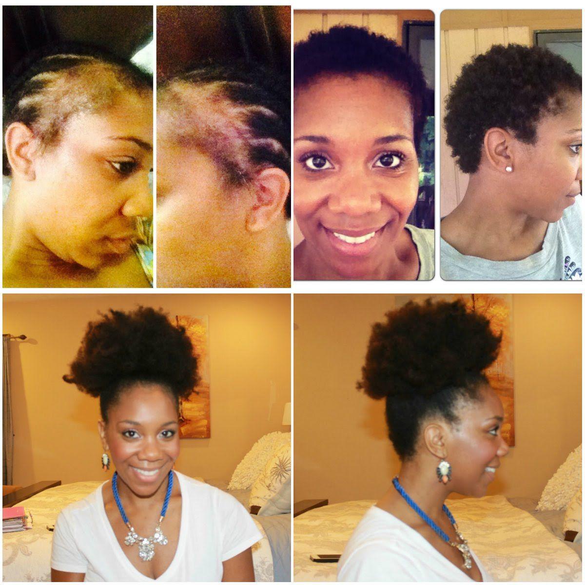 Fight Alopecia Naturally 10 Steps To Restoration Alopecia Natural Hair Natural Hair Loss Natural Hair Loss Treatment