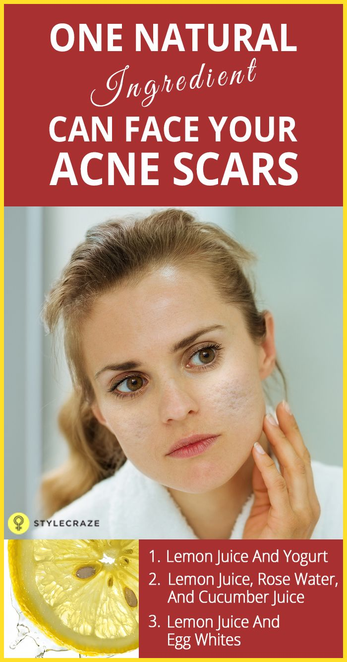how to use lemon juice for acne scars?   be a girl   pinterest