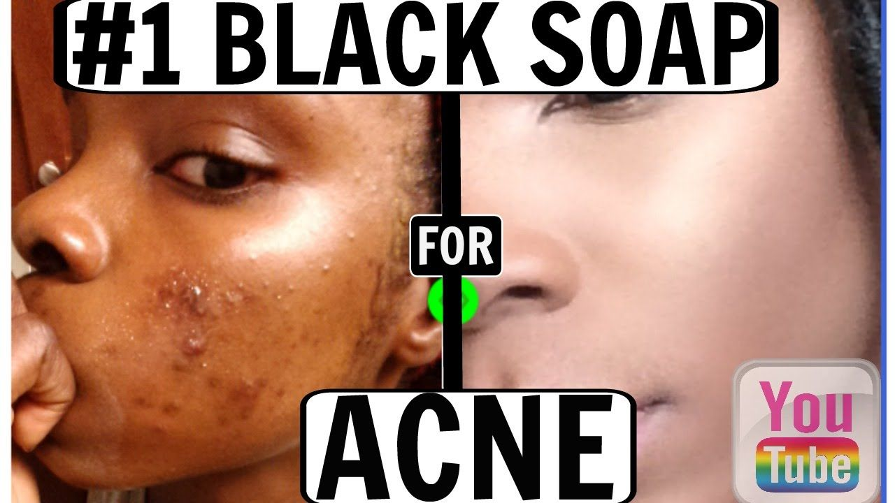 THE 1 BEST BLACK SOAP FOR ACNE!! (Before & After) Fair