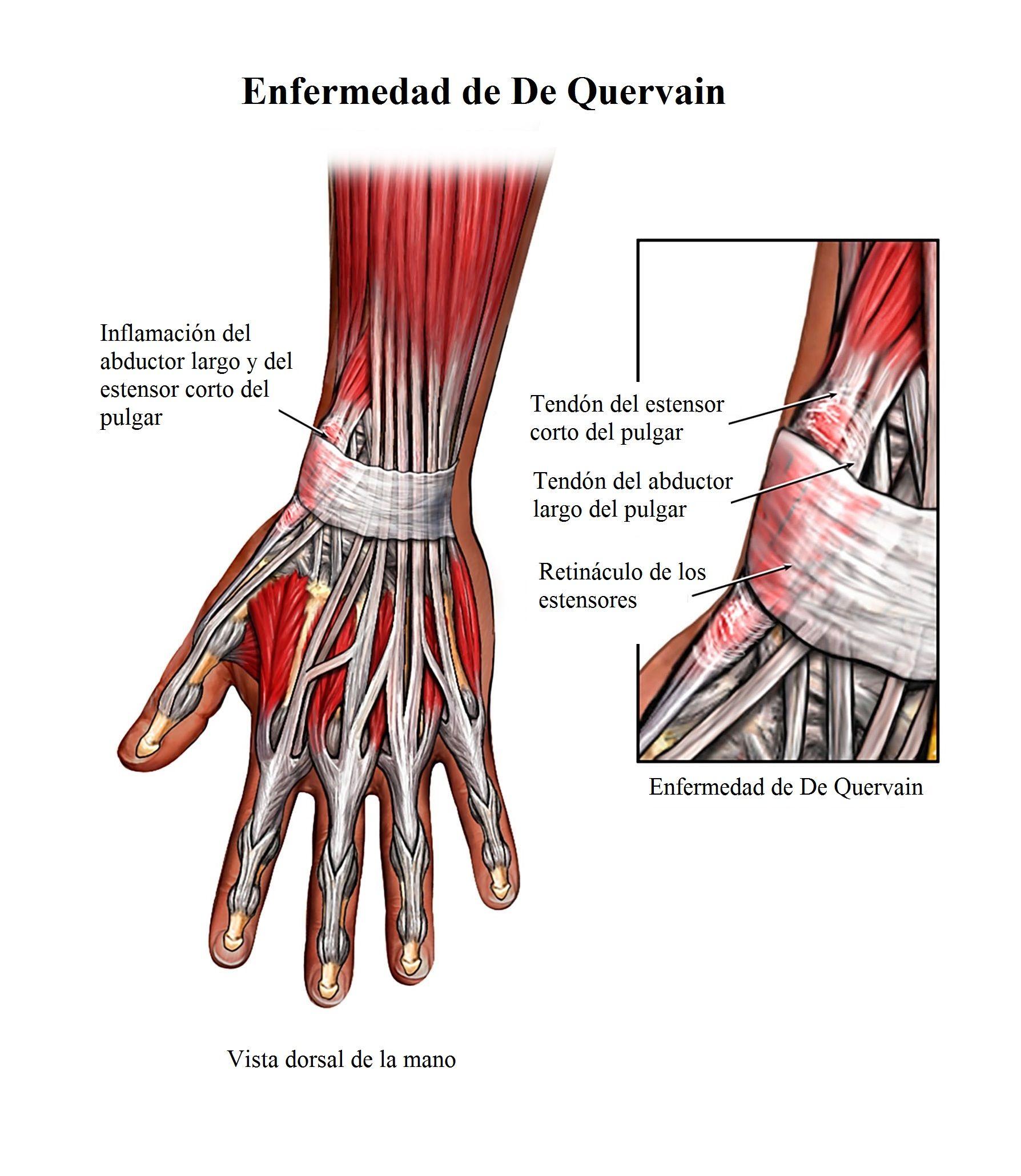 Magnífico La Anatomía De La Muñeca Mri Bandera - Anatomía de Las ...
