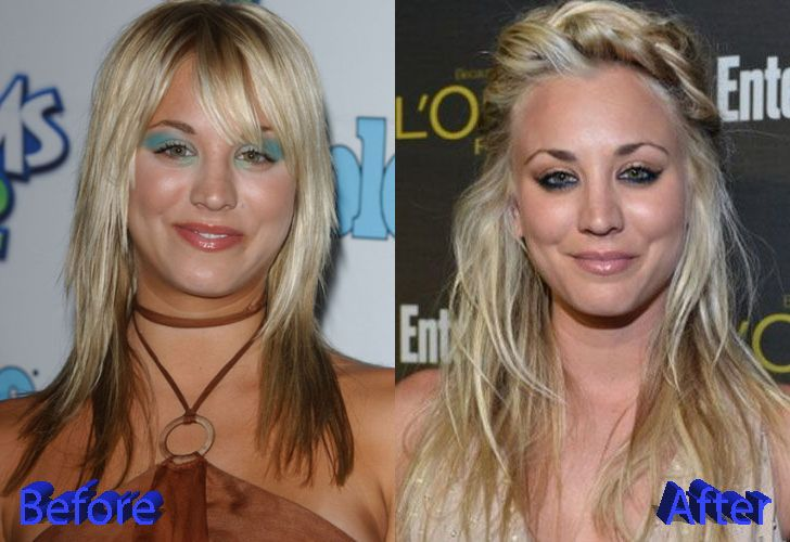 Kaley Cuoco Plastic Surgery Before And After Plastic Surgery Celebrity Plastic Surgery Kaley Cuoco