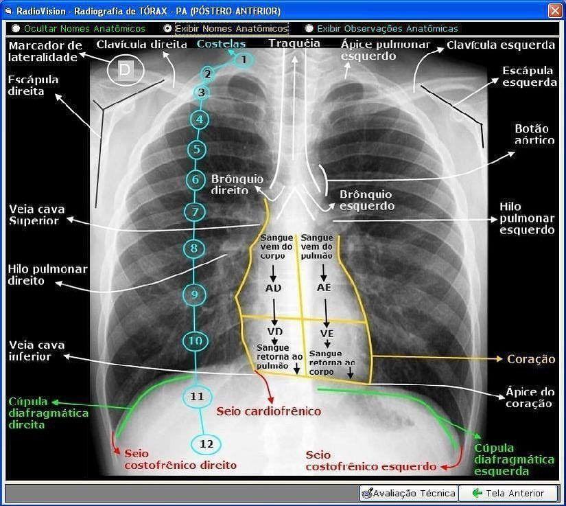 Correlación #Anatómica del #Tórax . . #Anatomía #Radiología ...