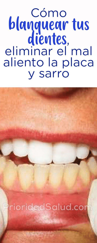 Ps28j Como Blanquear Tus Dientes Eliminar El Mal Aliento La Placa Y Sarro Natural Teething Remedies Allergy Remedies Natural Remedies