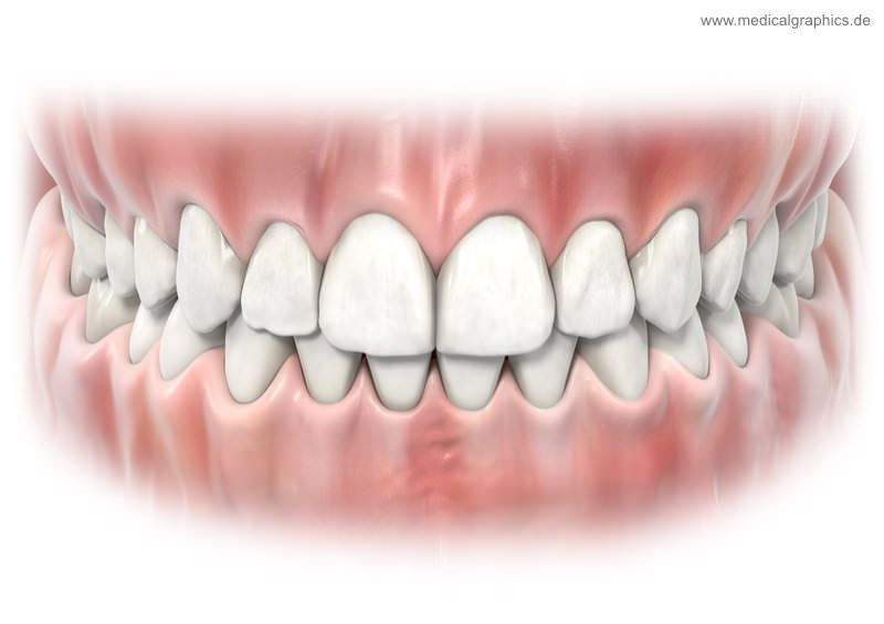 Friendly Dental Crowns Before And After Tips