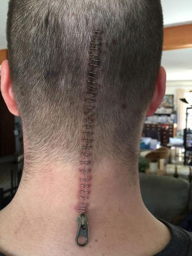 après une opération pour retirer sa tumeur au cerveau, il transforme