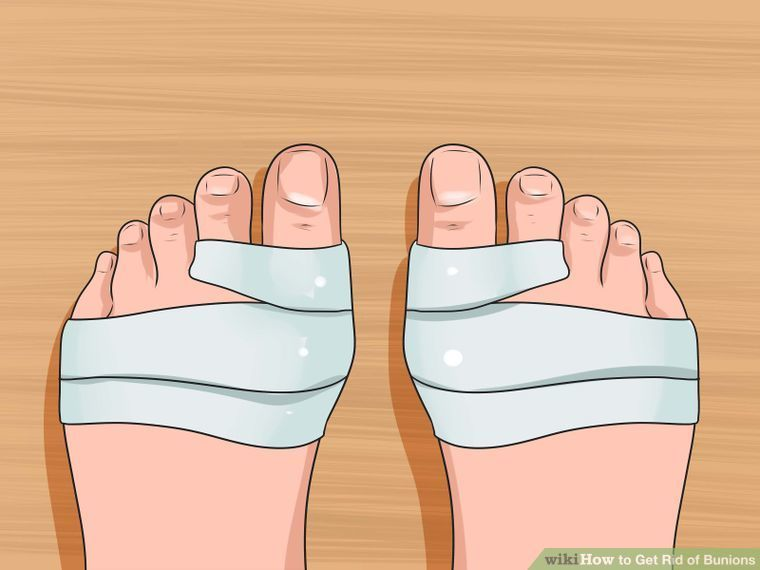 Image titled Get Rid of Bunions Step 6