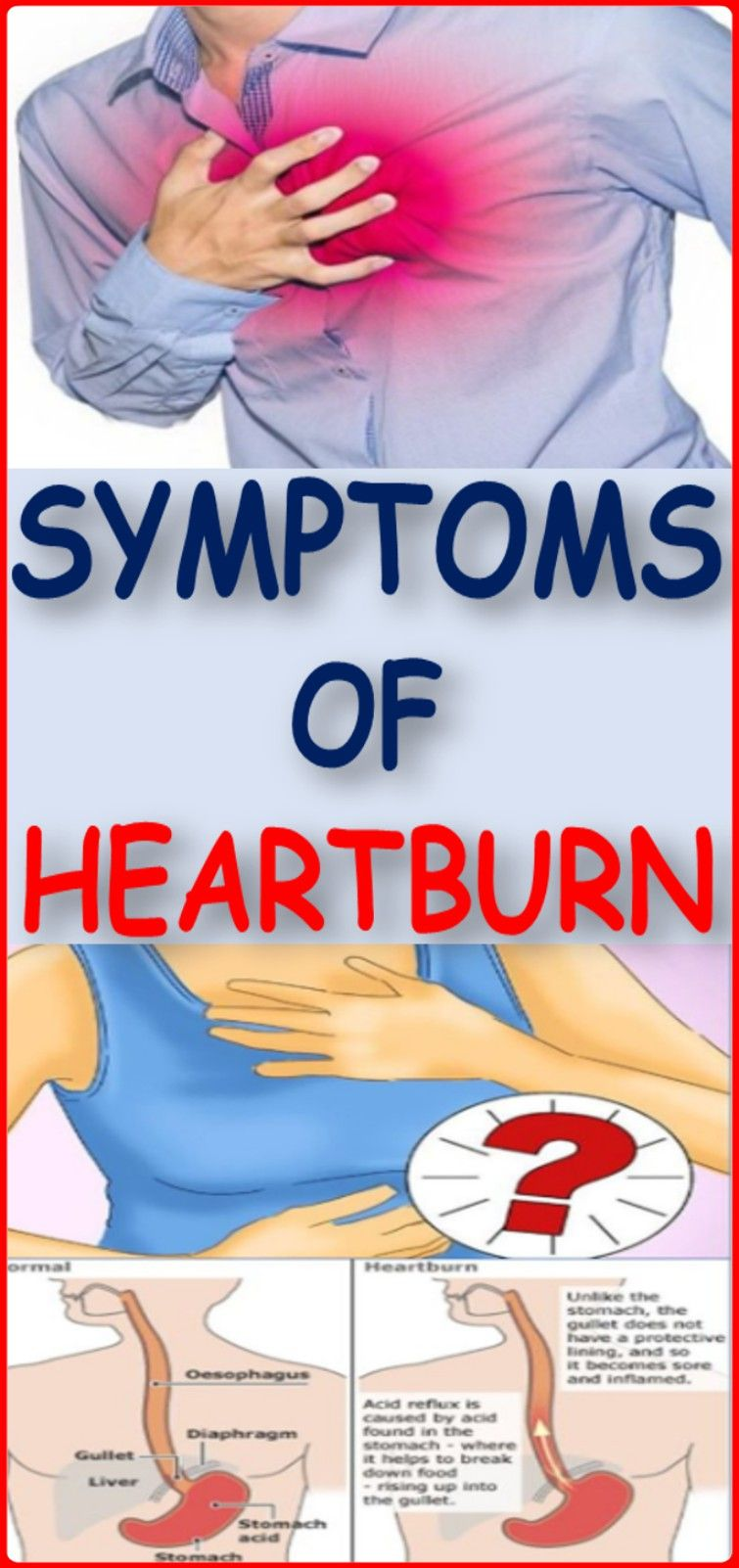 Heartburn affects over 60 million Americans every week and