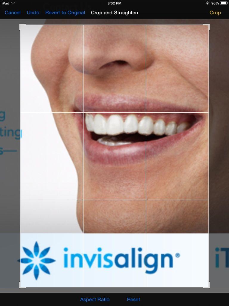 Pressutti Orthodontics offers Invisalign! Straighten your