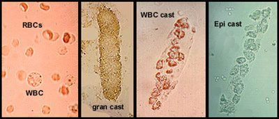 White Blood Cells Found In Cat Urine