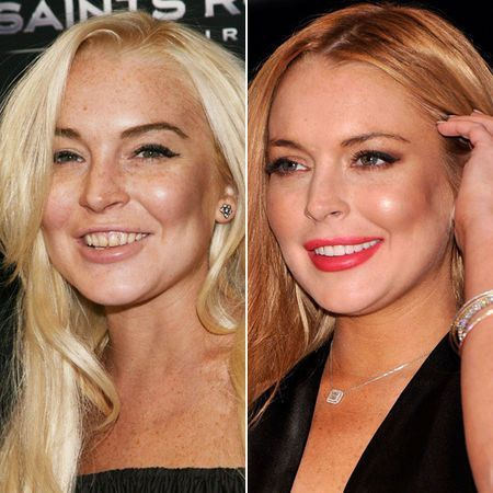 10 Best Celebrity Before and Afters images | Celebrity ...