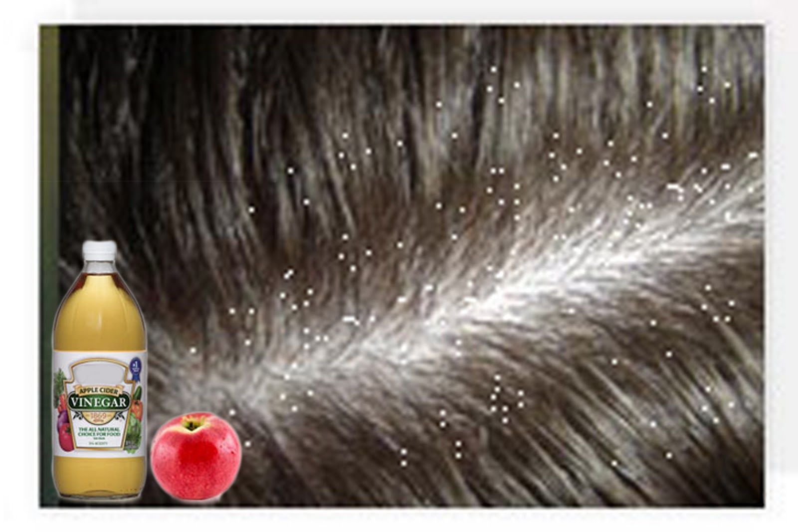 Divalicious: 20 Home Remedies to Get Rid of Dandruff- Dandruff Treatment and Cure