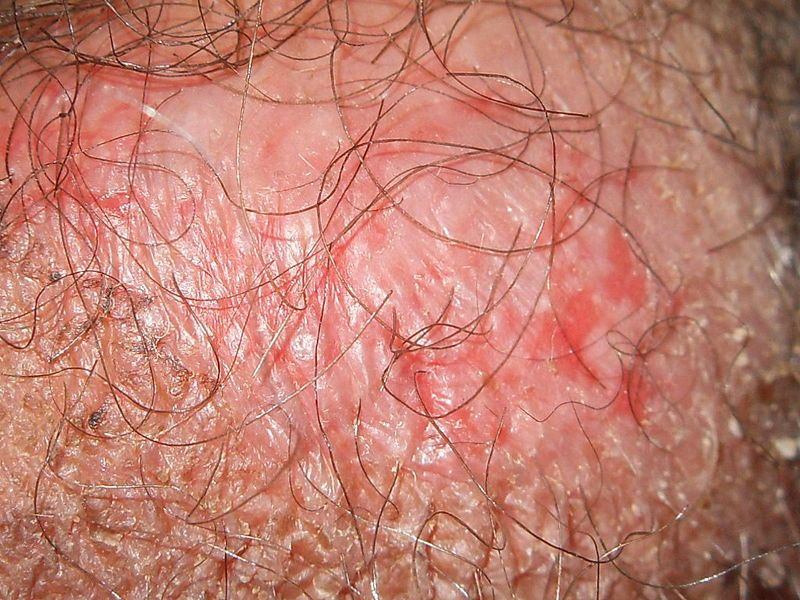 Penile Psoriasis Natural Treatment