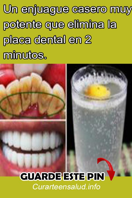 Un Enjuague Casero Muy Potente Que Elimina La Placa Dental En 2 Minutos Enjuague Bucal Casero Placas Dentales Enjuague Bucal