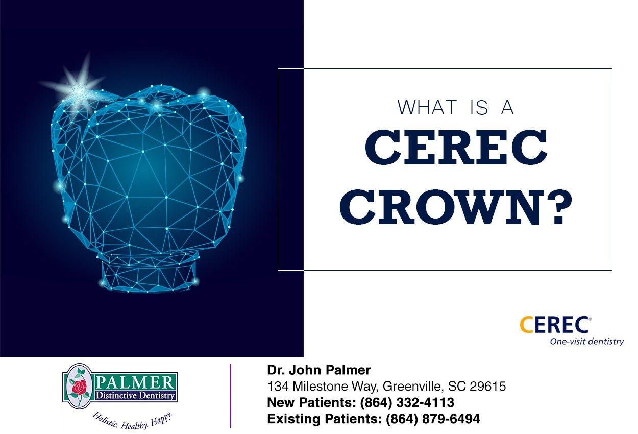 What Is A Cerec Crown In 2020 Dental Crowns Dental Procedures Dental
