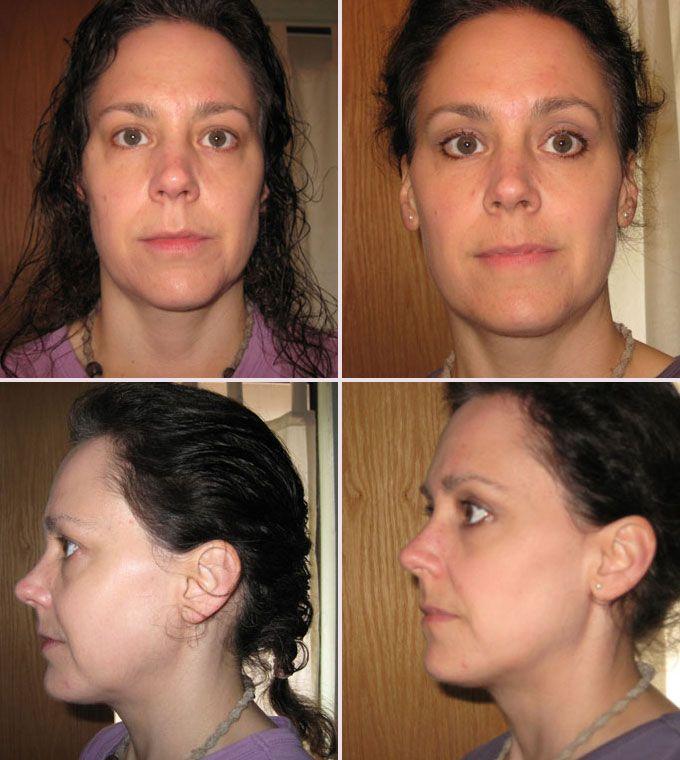 flex facial exercise and