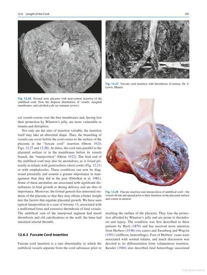 Pathology Of The Human Placenta Kurt Benirschke Graham J Burton