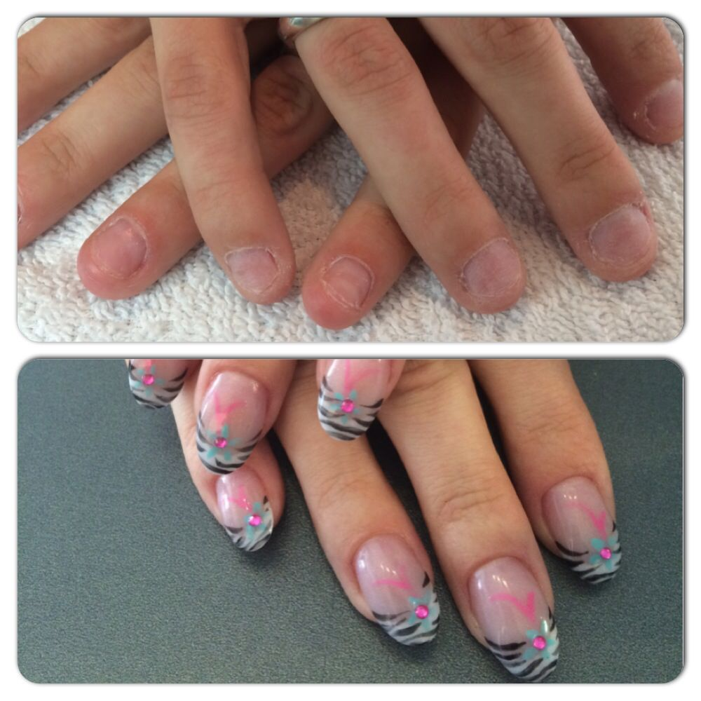 Gespecialiseerd in nagelbijters